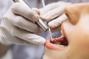 Лечение зубов в районе Кунцево